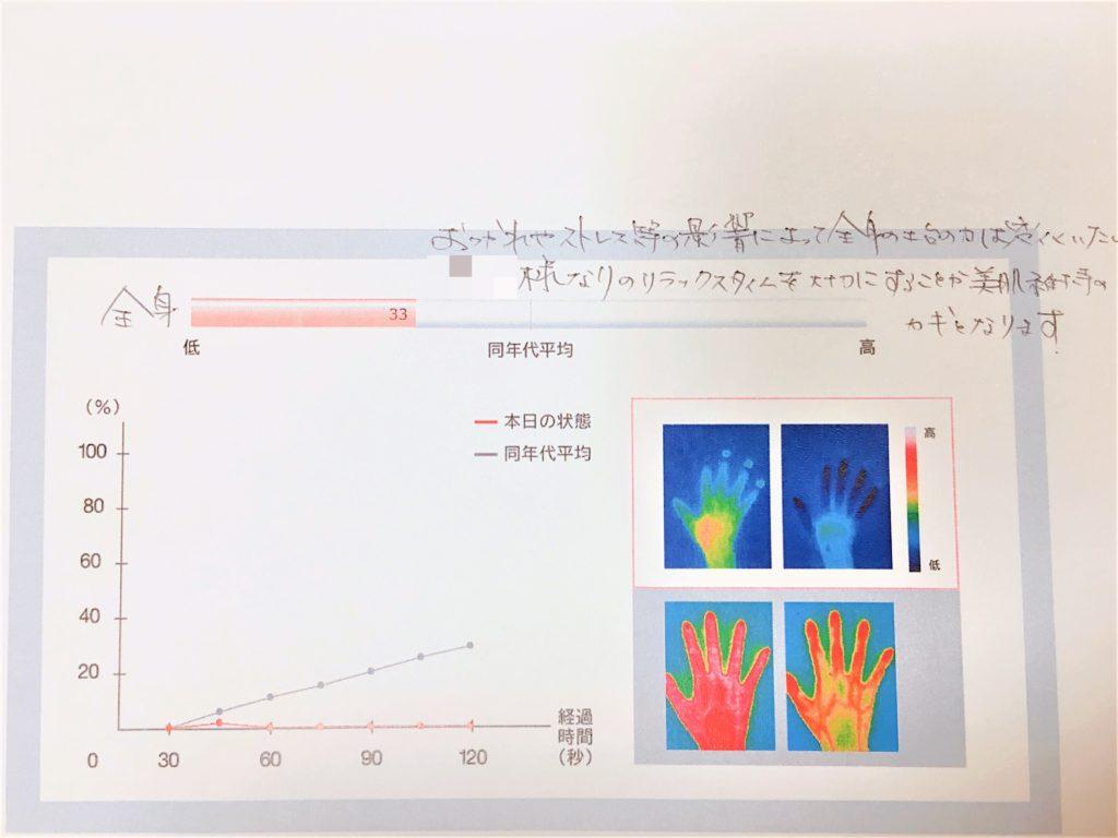 手の温度の戻り方計測結果