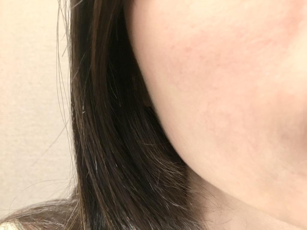 ビーグレンホワイトケアトライアルセットを1週間試した肌