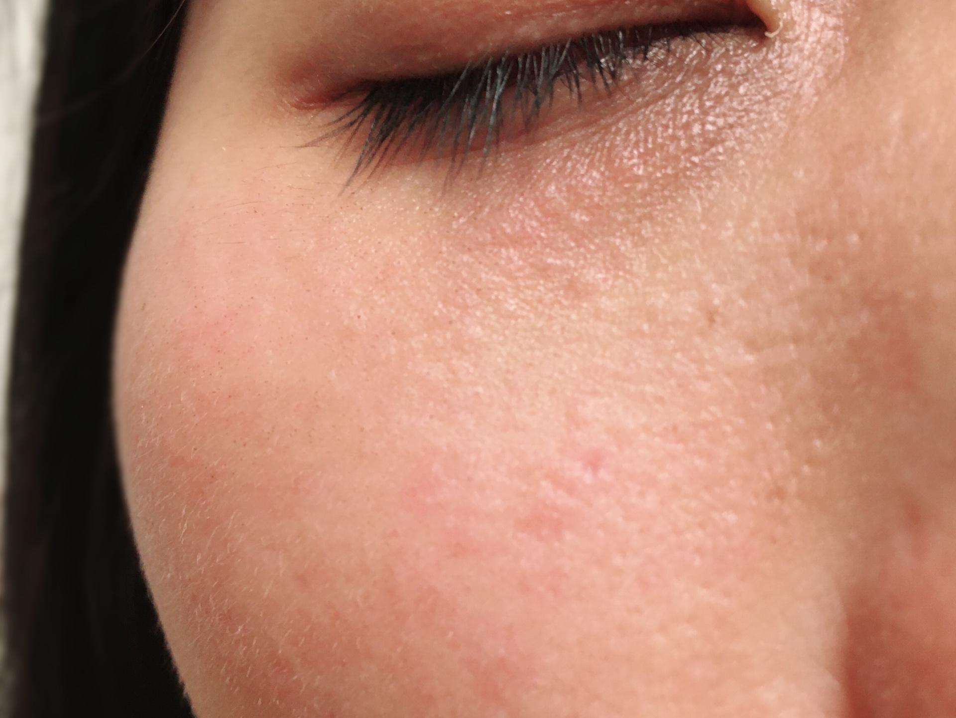 トリアスキンエイジングケアレーザーを照射して6週間後の顔