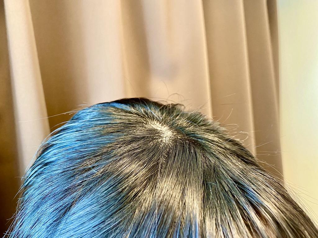 プリュスオーポイントリペアでアホ毛を整えた頭斜め視点