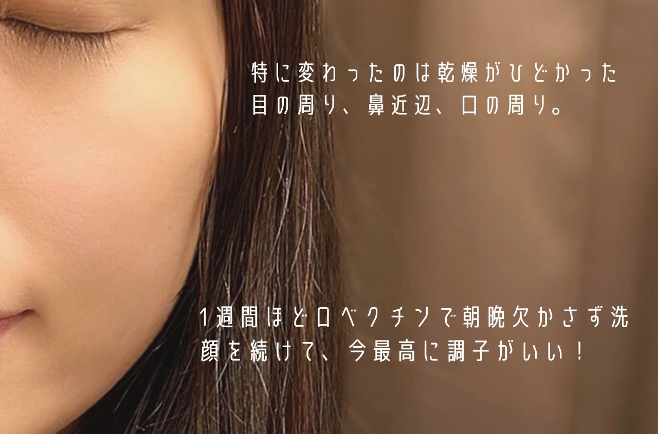 ロベクチン エッセンシャルクレンザーで1週間ほど洗ってみた顔